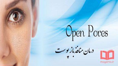 Photo of علت باز شدن منافذ پوست صورت چیست ؟ + راه های درمان