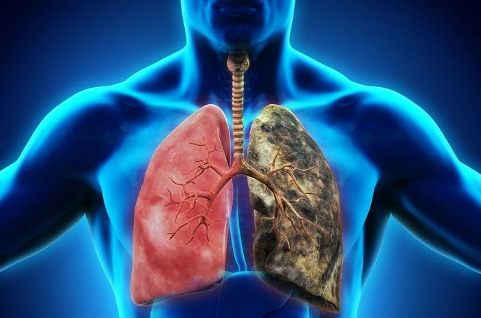 بیماریهای ریوی و تنفسی