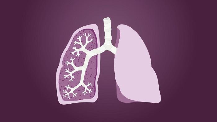 درمان بیماری ریه